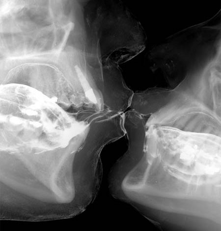 Science of a kiss